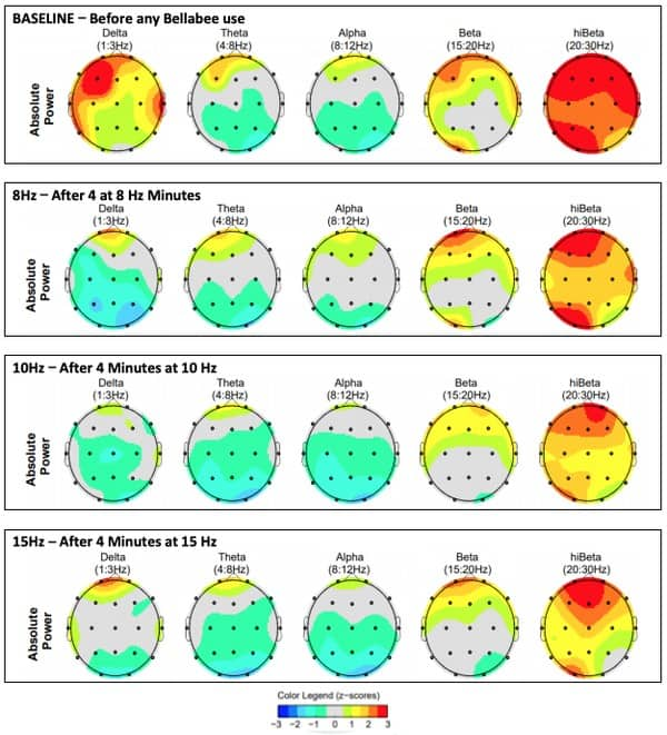 How does neurofeedback work